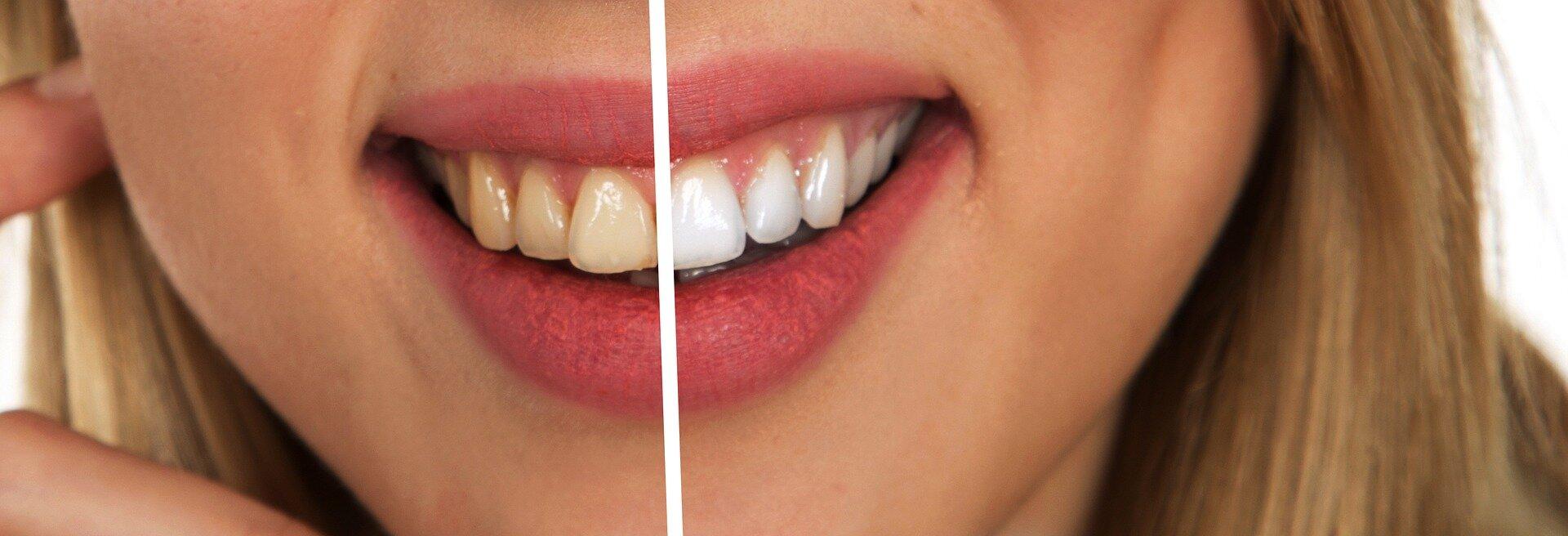 blanchiment dentaire eclaircissement chirurgien dentiste dentaire pari 7